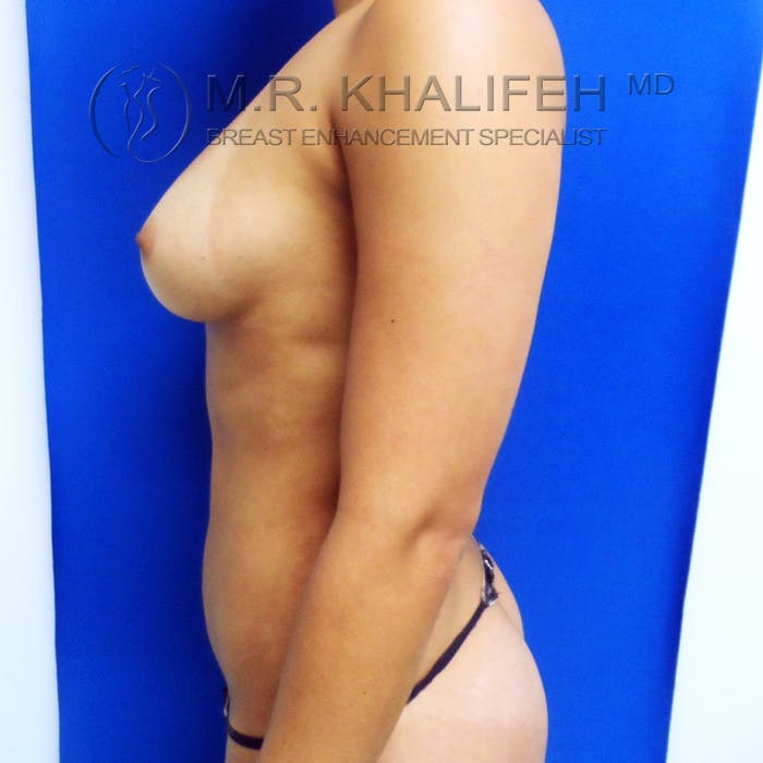 Fat Transfer Breast Augmentation Gallery - Patient 3761912 - Image 10