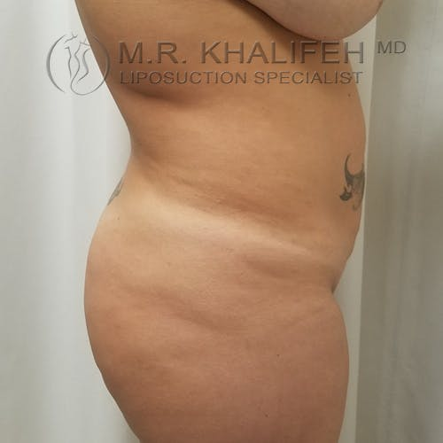 Midback-Bra Line Lipo Gallery - Patient 3761916 - Image 3