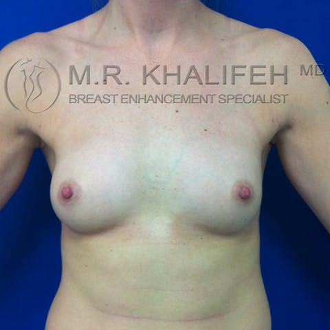 Fat Transfer Breast Augmentation Gallery - Patient 3761927 - Image 2