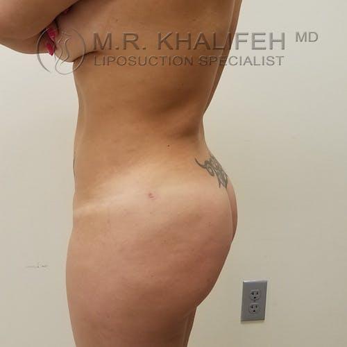 Midback-Bra Line Lipo Gallery - Patient 3761916 - Image 6