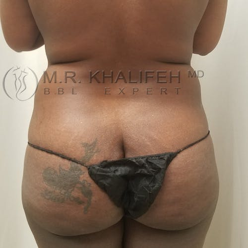 Midback-Bra Line Lipo Gallery - Patient 3761928 - Image 1