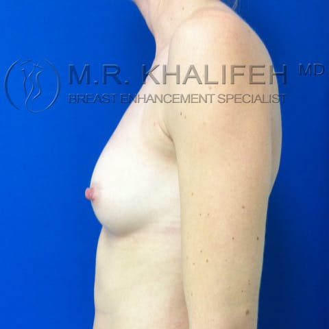 Fat Transfer Breast Augmentation Gallery - Patient 3761927 - Image 6
