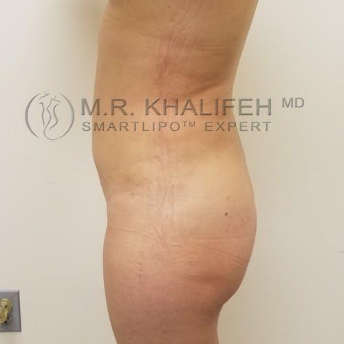 Midback-Bra Line Lipo Gallery - Patient 3761934 - Image 4