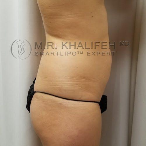 Midback-Bra Line Lipo Gallery - Patient 3761934 - Image 5