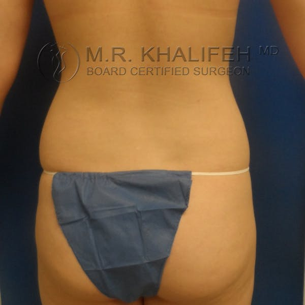 Fat Transfer Breast Augmentation Gallery - Patient 3761935 - Image 9