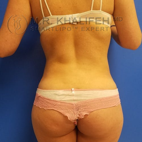 Midback-Bra Line Lipo Gallery - Patient 3761941 - Image 2