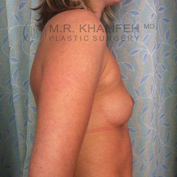 Breast Augmentation Gallery - Patient 3761938 - Image 5
