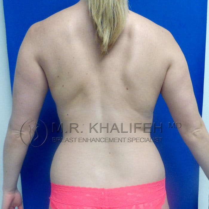 Fat Transfer Breast Augmentation Gallery - Patient 3761943 - Image 5