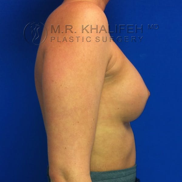 Breast Augmentation Gallery - Patient 3761938 - Image 6