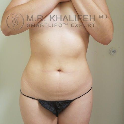 Midback-Bra Line Lipo Gallery - Patient 3761941 - Image 7