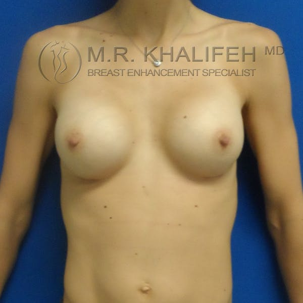 Breast Augmentation Gallery - Patient 3761948 - Image 2