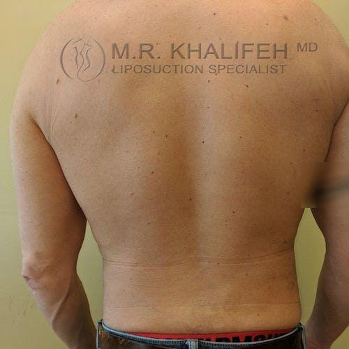 Midback-Bra Line Lipo Gallery - Patient 3761949 - Image 1