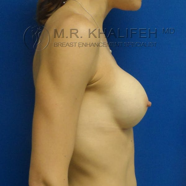 Breast Augmentation Gallery - Patient 3761948 - Image 4