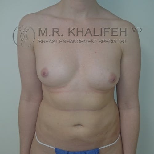 Fat Transfer Breast Augmentation Gallery - Patient 3761953 - Image 1