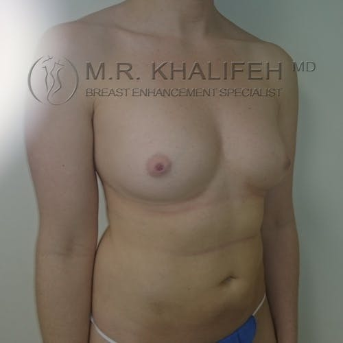 Fat Transfer Breast Augmentation Gallery - Patient 3761953 - Image 3