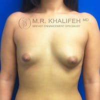 Breast Augmentation Gallery - Patient 3761954 - Image 1