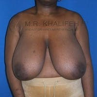 Breast Reduction Gallery - Patient 3761950 - Image 1