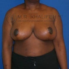Breast Reduction Gallery - Patient 3761950 - Image 2