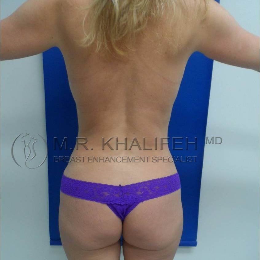 Breast Lift Gallery - Patient 3761952 - Image 6