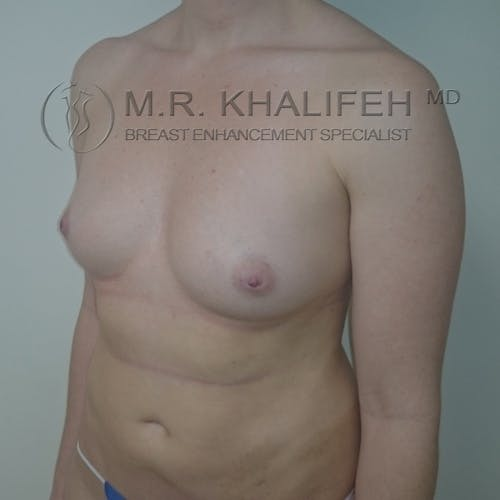 Fat Transfer Breast Augmentation Gallery - Patient 3761953 - Image 7