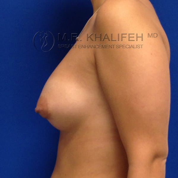 Breast Augmentation Gallery - Patient 3761954 - Image 4