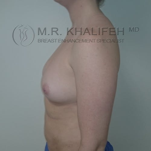 Fat Transfer Breast Augmentation Gallery - Patient 3761953 - Image 9
