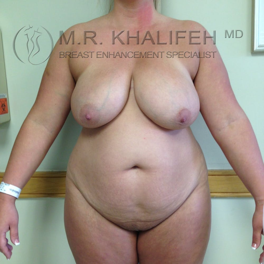 Breast Reduction Gallery - Patient 3761957 - Image 1