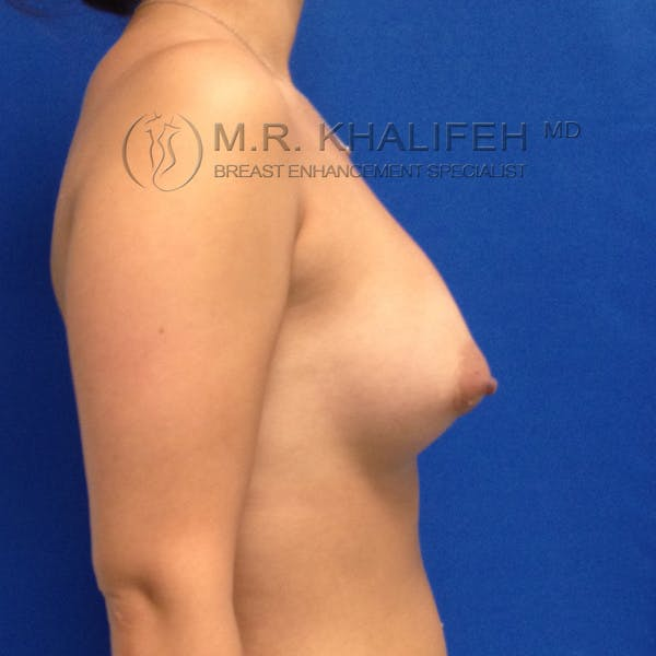 Breast Augmentation Gallery - Patient 3761954 - Image 6
