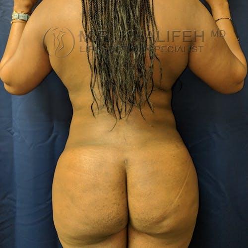 Midback-Bra Line Lipo Gallery - Patient 3761956 - Image 2