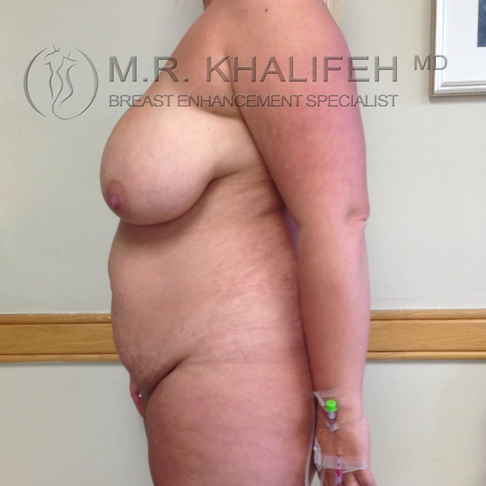 Breast Reduction Gallery - Patient 3761957 - Image 3