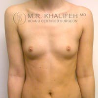 Breast Augmentation Gallery - Patient 3761958 - Image 1