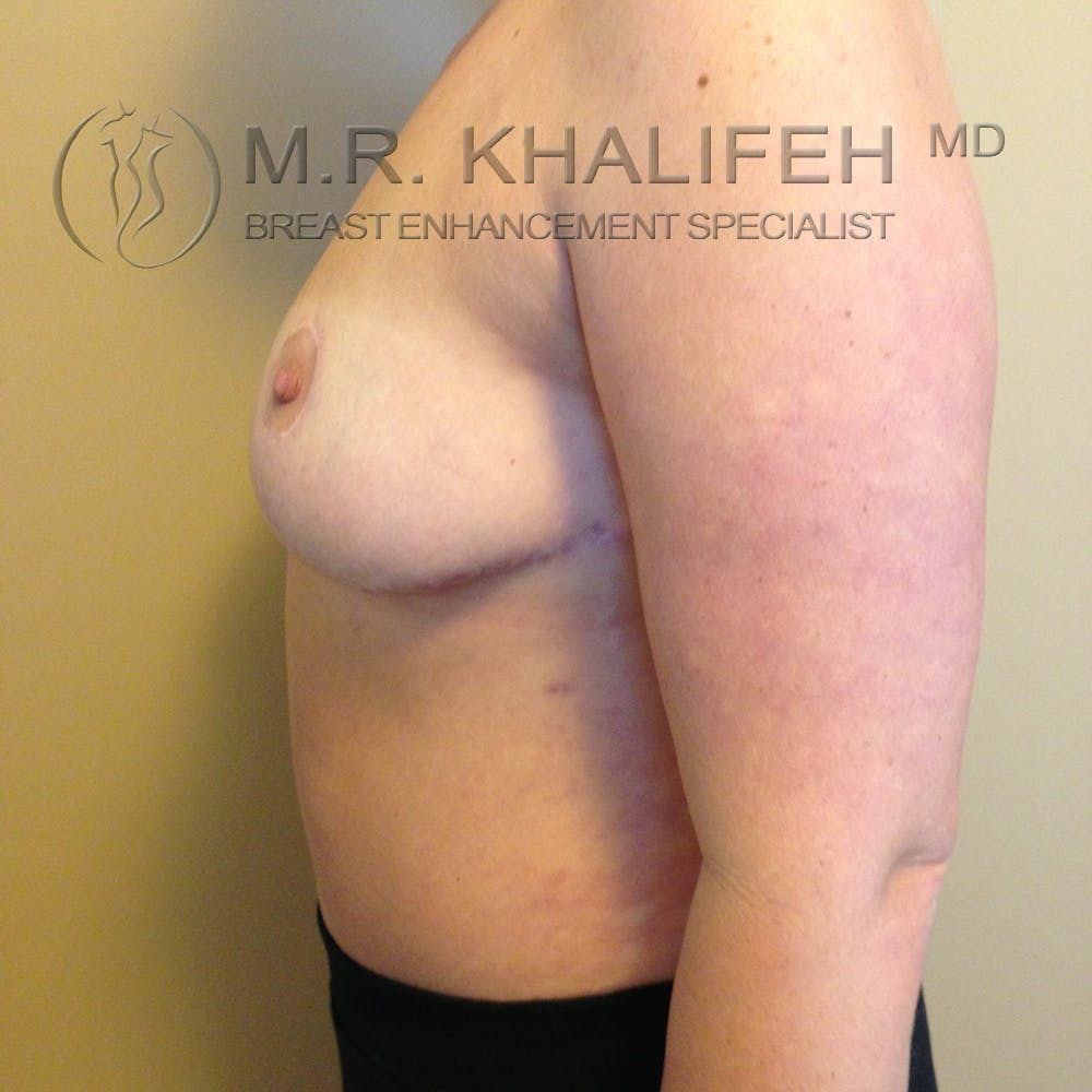 Breast Reduction Gallery - Patient 3761957 - Image 4