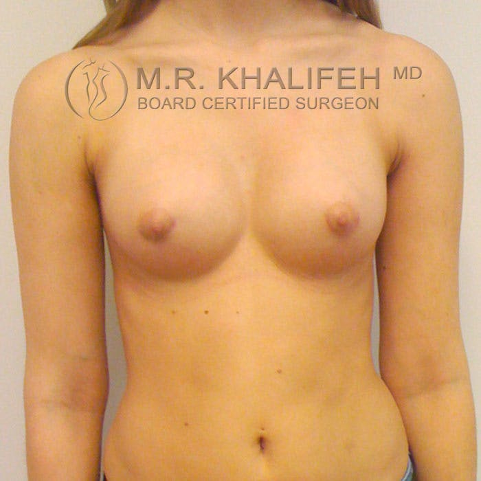 Breast Augmentation Gallery - Patient 3761958 - Image 2