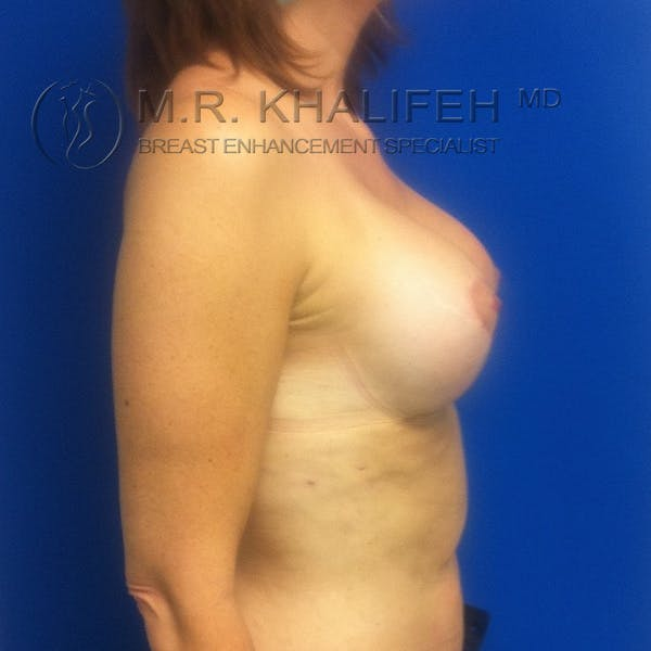 Breast Lift Gallery - Patient 3761955 - Image 4