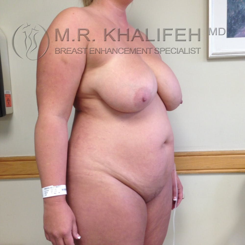 Breast Reduction Gallery - Patient 3761957 - Image 5