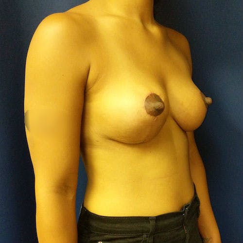 Breast Lift Gallery - Patient 3761959 - Image 2