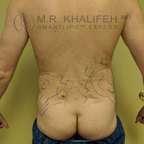 Midback-Bra Line Lipo Gallery - Patient 3761962 - Image 1