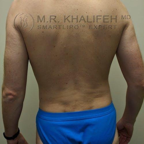 Midback-Bra Line Lipo Gallery - Patient 3761962 - Image 2