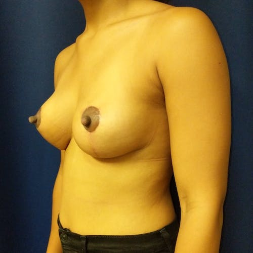 Breast Lift Gallery - Patient 3761959 - Image 4
