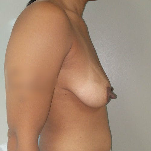 Breast Lift Gallery - Patient 3761959 - Image 5