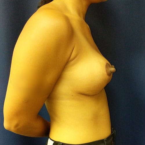 Breast Lift Gallery - Patient 3761959 - Image 6