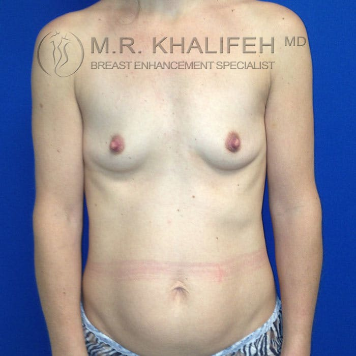 Breast Augmentation Gallery - Patient 3761961 - Image 1
