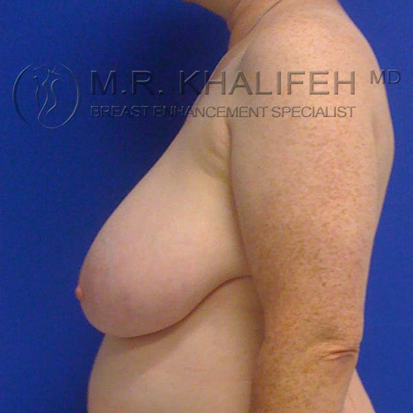 Breast Reduction Gallery - Patient 3761960 - Image 3