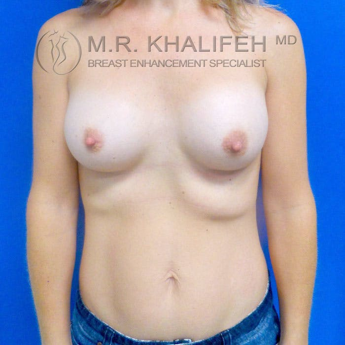 Breast Augmentation Gallery - Patient 3761961 - Image 2