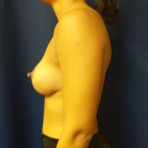 Breast Lift Gallery - Patient 3761959 - Image 8