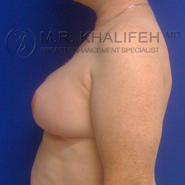 Breast Reduction Gallery - Patient 3761960 - Image 4