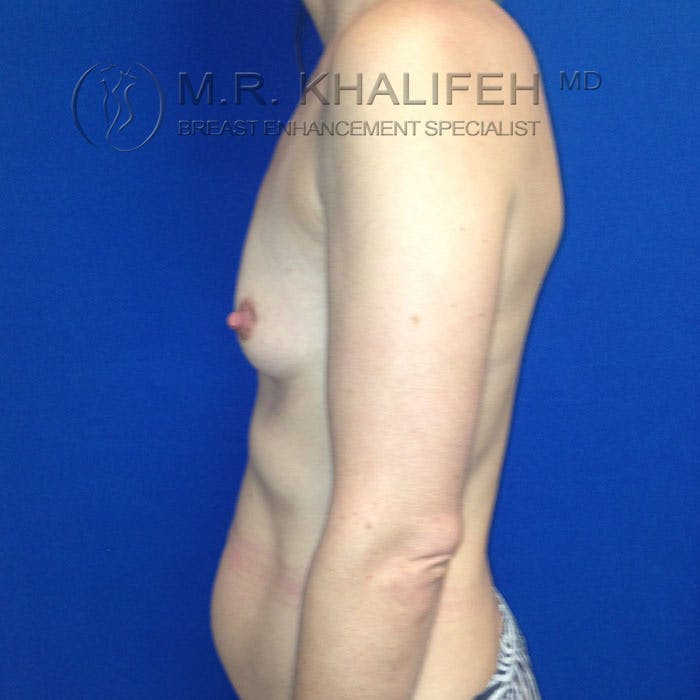 Breast Augmentation Gallery - Patient 3761961 - Image 3