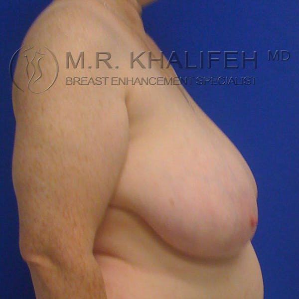 Breast Reduction Gallery - Patient 3761960 - Image 5