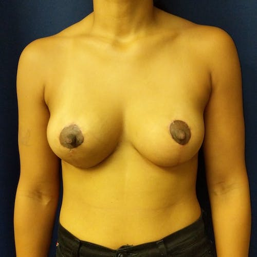 Breast Lift Gallery - Patient 3761959 - Image 10