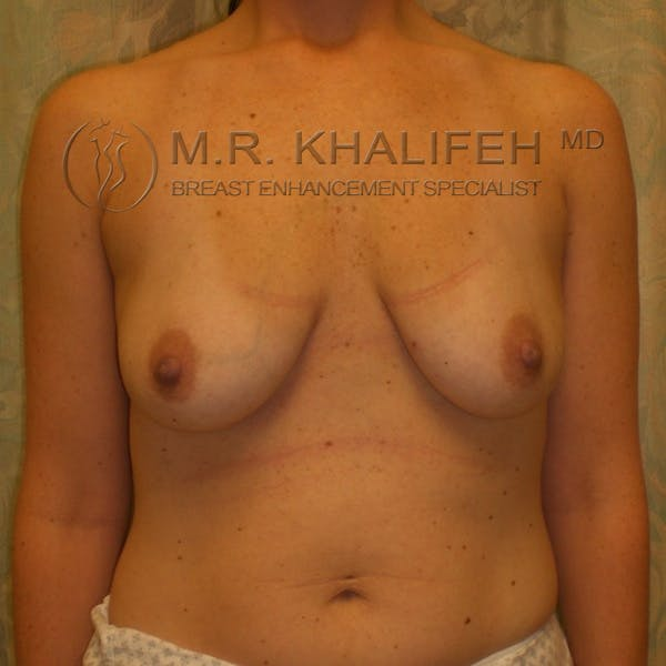 Breast Lift Gallery - Patient 3761967 - Image 1